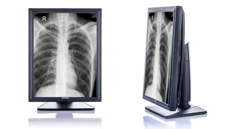 Маммографический диагностический монитор JUSHA M33C